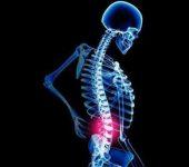 прикладная кинезиология для решения проблемы структурной составляющей здоровья